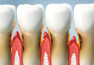 treat your teeth, periodontal