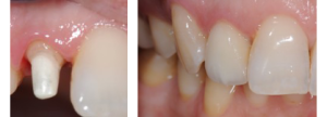 Perno in zirconia a implanto dentale