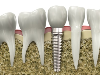 Implantologia a Padova