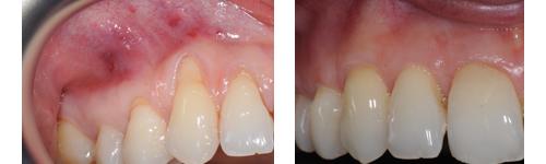 Ricostruzione gengive - Chirurgia Plastica delle gengive