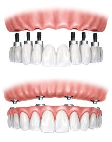 Esempi di Implantologia Carico Immediato