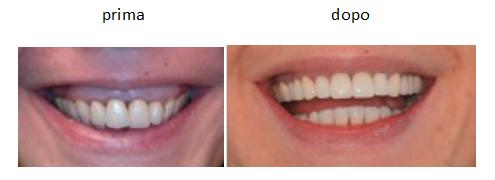Ricostruzione gengive: Prima e dopo il trattamento di Chirurgia Plastica delle gengive