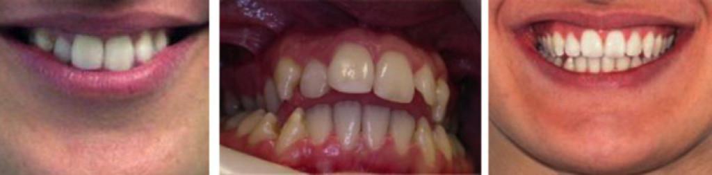 intervento maxillo facciale terza classe prima e dopo - Padova