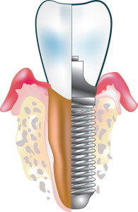 Tooth implant in aesthetic zone