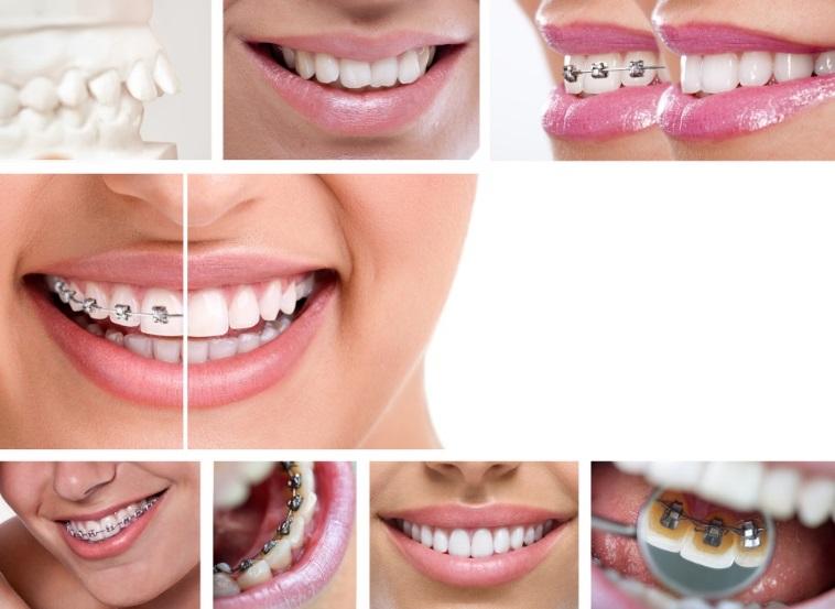 ortodonzia avanzata a Padova per il corretto allineamento dei denti