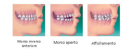 patologie ortodontiche più comuni che richiedono ortodonzia avanzata