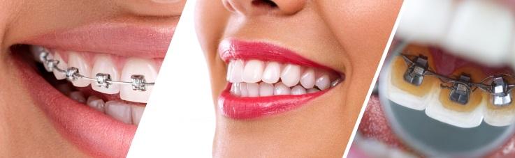 Nuova tecniche di ortodonzia avanzata a Padova