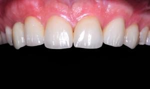 Caso finito dopo trattamento di implantologia estetica