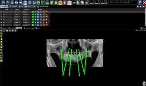 Progettazione impianti dentali implantologia avanzata a Padova
