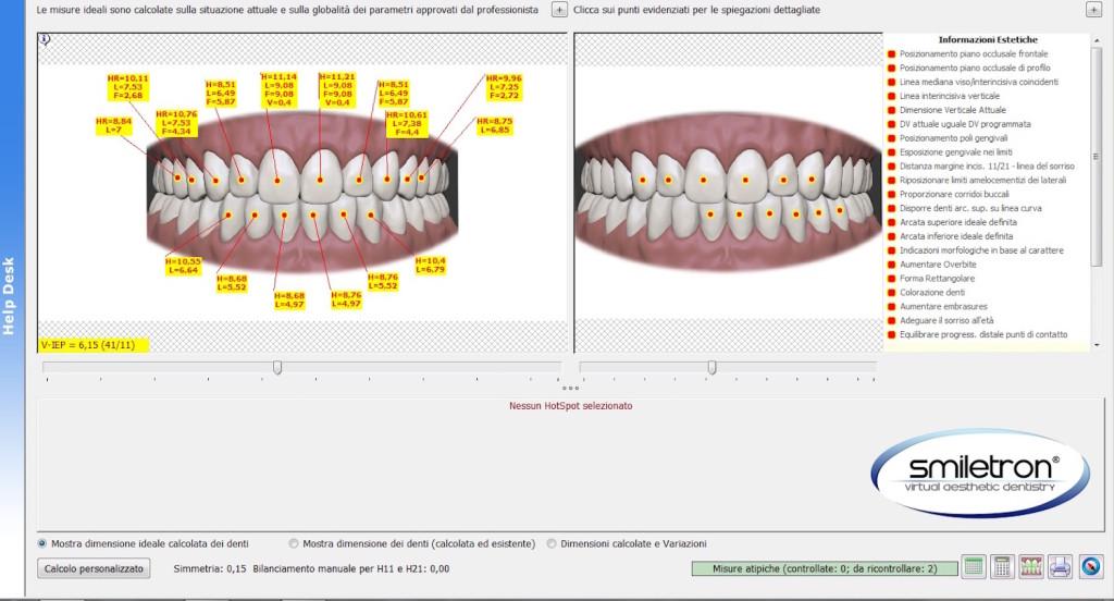 Elaborazione intelligente delle dimensioni dei denti